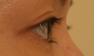 eyelash before